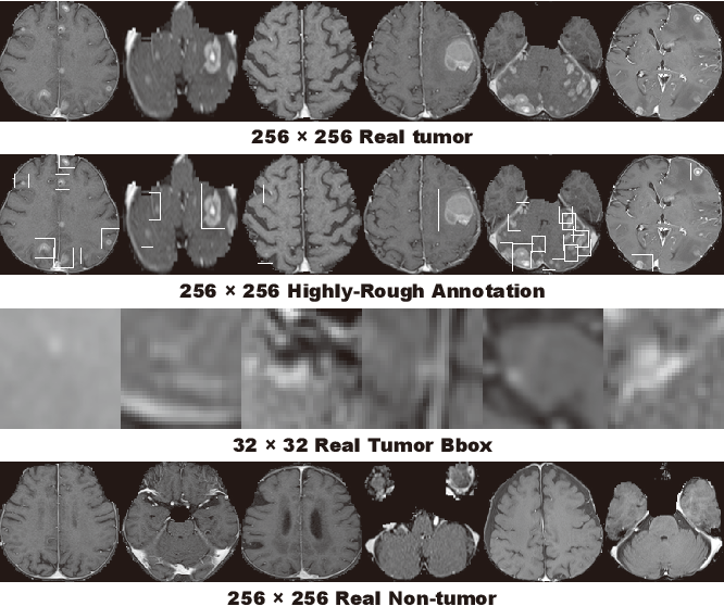Figure 3 for Learning More with Less: Conditional PGGAN-based Data Augmentation for Brain Metastases Detection Using Highly-Rough Annotation on MR Images
