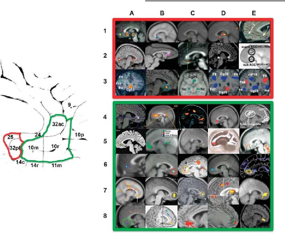 Functional anatomy of ventromedial prefrontal cortex: implications ...