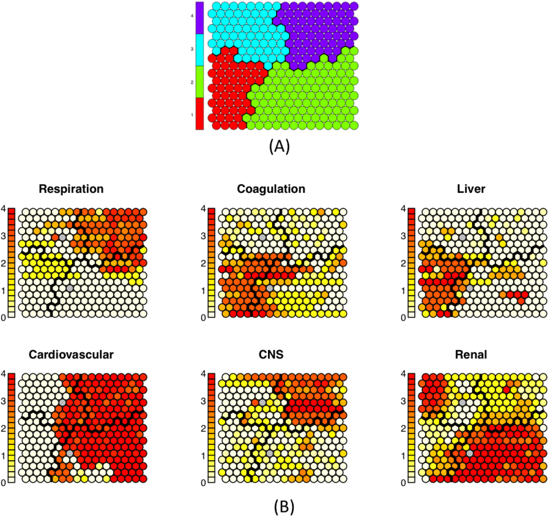 Figure 3 for On Classifying Sepsis Heterogeneity in the ICU: Insight Using Machine Learning