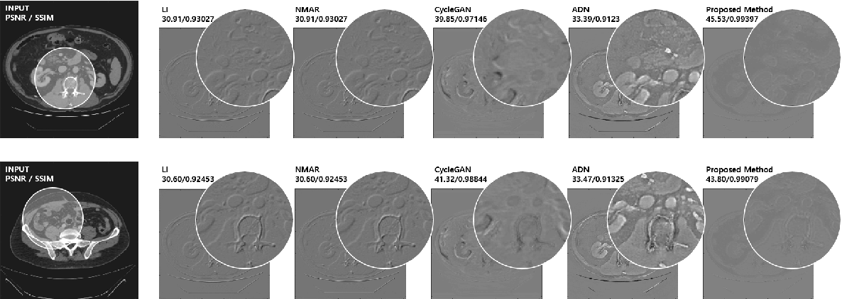 Figure 2 for Unsupervised CT Metal Artifact Learning using Attention-guided beta-CycleGAN