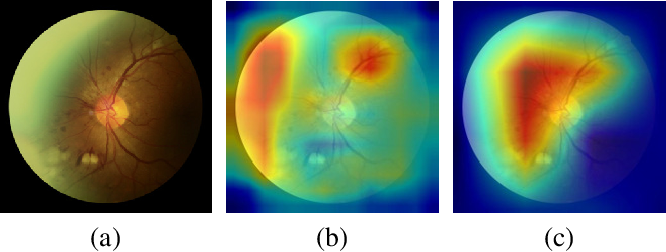 Figure 4 for Learning Discriminative Representations for Fine-Grained Diabetic Retinopathy Grading