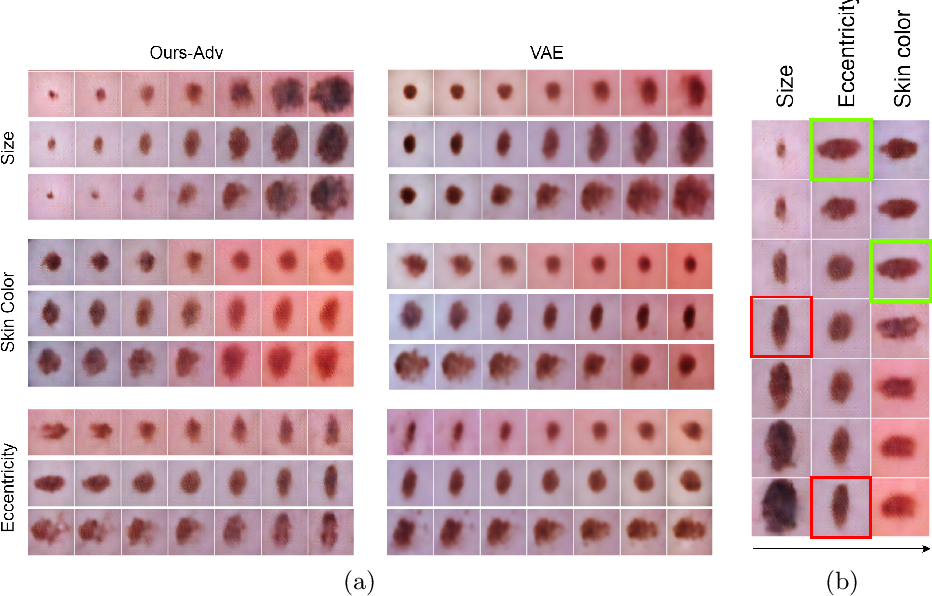 Figure 1 for Learning Interpretable Disentangled Representations using Adversarial VAEs