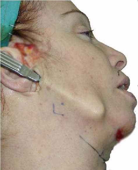 Surgical Anatomy of the Lower Face: The Premasseter Space, the Jowl ...