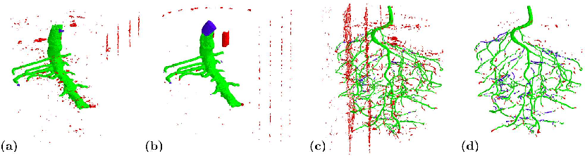 Figure 4 for 3D U-Net for Segmentation of Plant Root MRI Images in Super-Resolution
