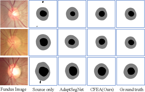 Figure 4 for CFEA: Collaborative Feature Ensembling Adaptation for Domain Adaptation in Unsupervised Optic Disc and Cup Segmentation