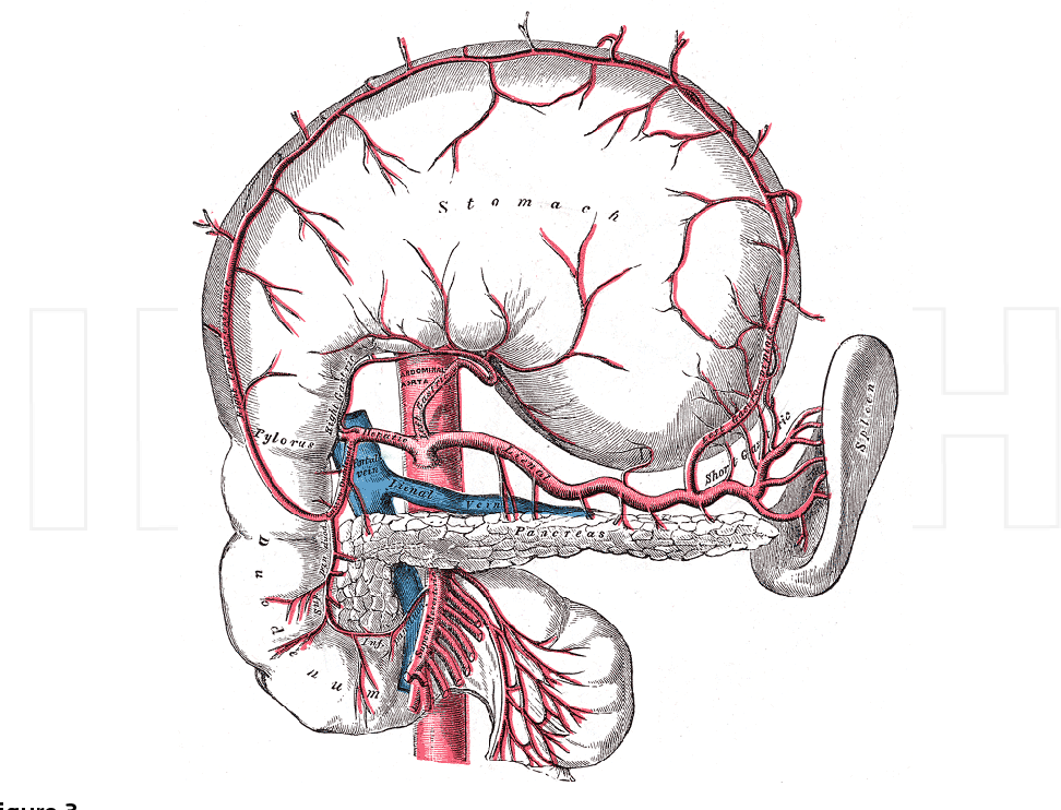 Splenic Artery Aneurysms Semantic Scholar