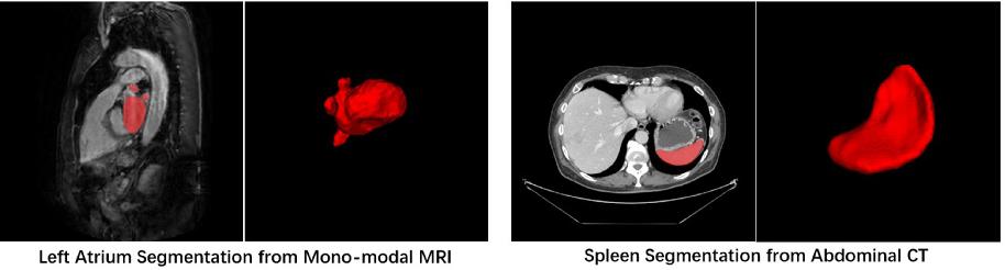 Figure 1 for Exploring Efficient Volumetric Medical Image Segmentation Using 2.5D Method: An Empirical Study