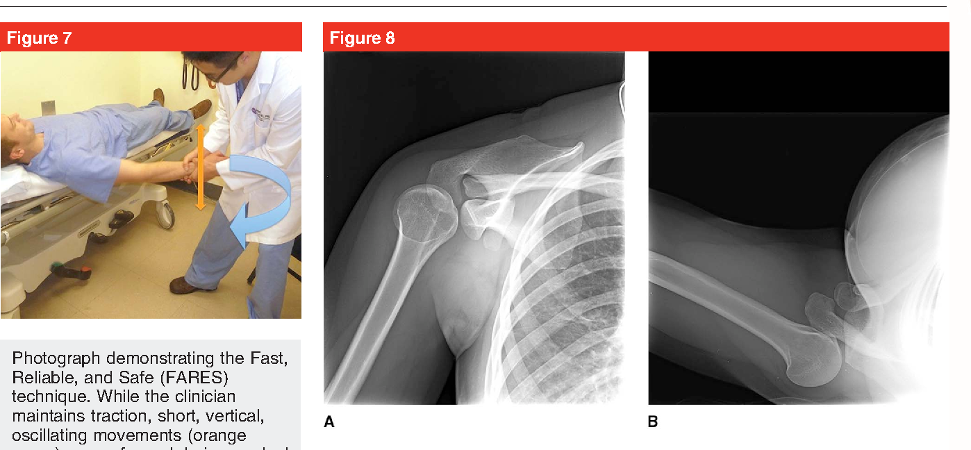 Figure 8 from Acute management of shoulder dislocations. - Semantic ...