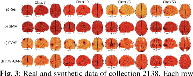 Figure 4 for FMRI data augmentation via synthesis