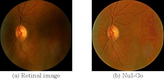Figure 1 for NuI-Go: Recursive Non-Local Encoder-Decoder Network for Retinal Image Non-Uniform Illumination Removal