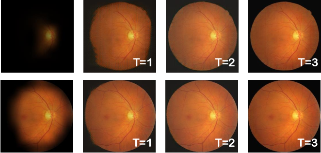Figure 4 for NuI-Go: Recursive Non-Local Encoder-Decoder Network for Retinal Image Non-Uniform Illumination Removal