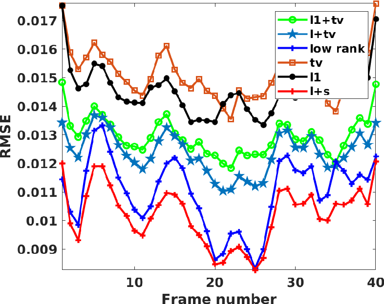 Figure 2 for Motion Compensated Dynamic MRI Reconstruction with Local Affine Optical Flow Estimation