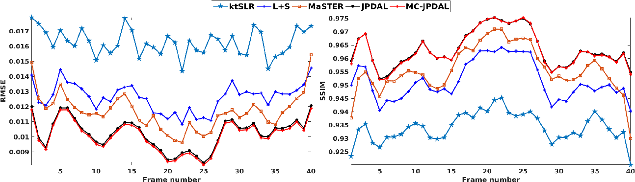 Figure 4 for Motion Compensated Dynamic MRI Reconstruction with Local Affine Optical Flow Estimation