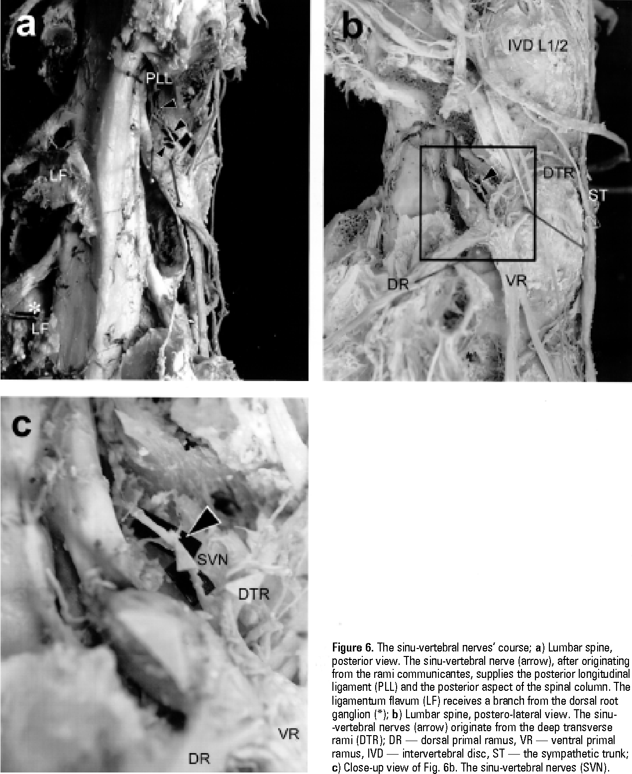 Figure 6 from Anatomical study of lumbar spine innervation ...