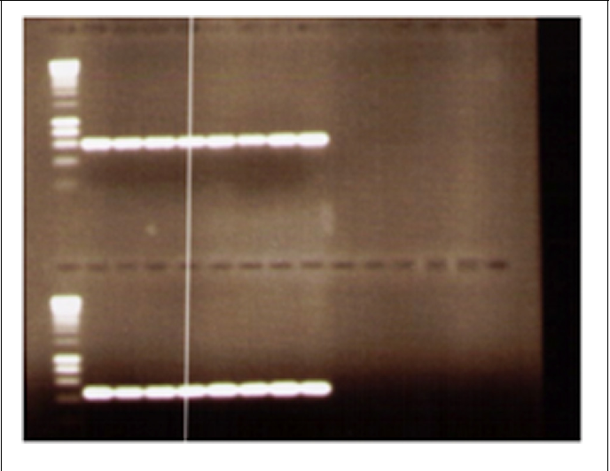 Figure 2 from Identification of Atypical El Tor V  cholerae