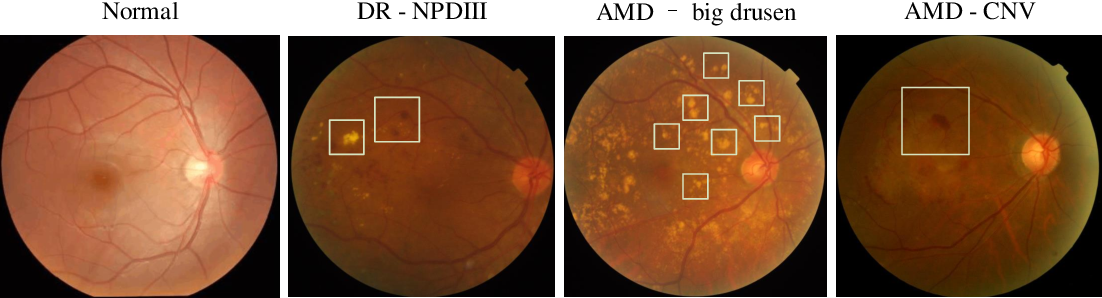 Figure 1 for Synergic Adversarial Label Learning with DR and AMD for Retinal Image Grading