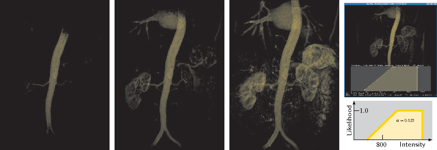 Fig. 9. Uncertainty animation in material sync mode for a MR renal angiography. Three examples of animation frames connecting visibility to different vessel probability levels. Rightmost, top: A screen shot from the application GUI. Bottom: The probabilistic TF.