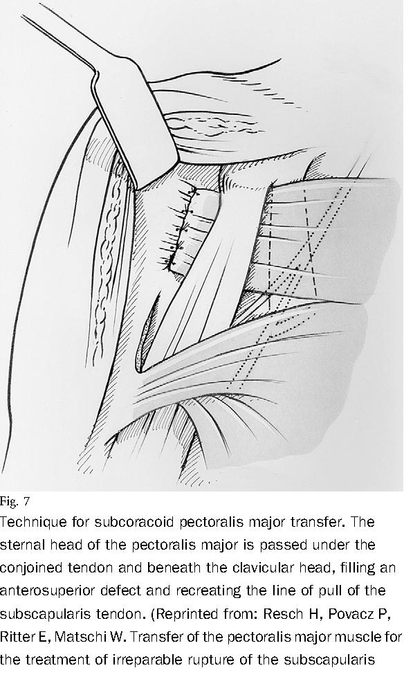 Figure 7 From Massive Tears Of The Rotator Cuff Semantic Scholar