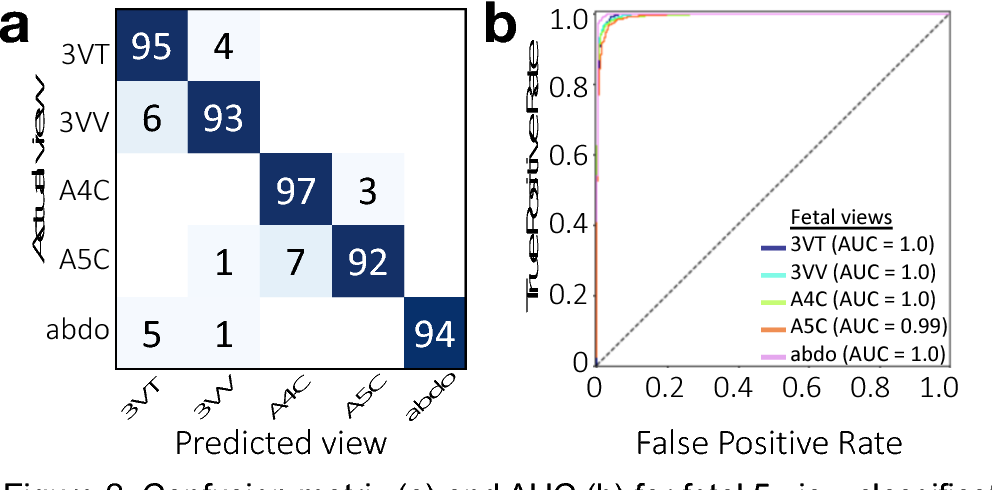 Figure 2 for Deep-learning models improve on community-level diagnosis for common congenital heart disease lesions