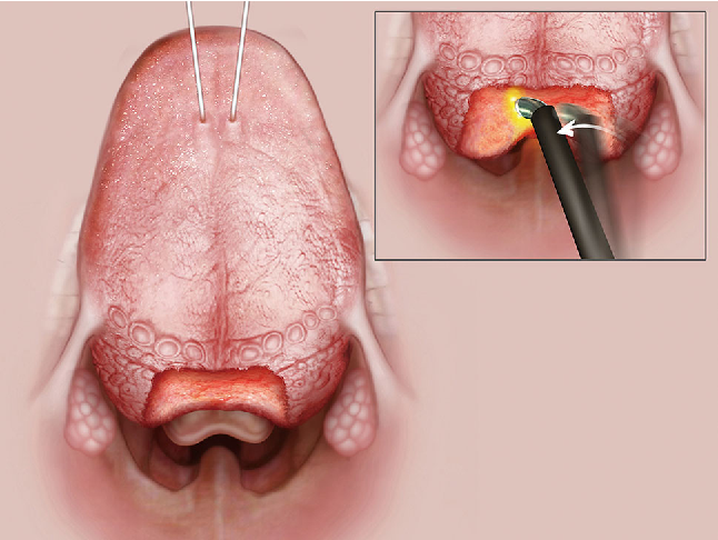 Figure 4 from Coblation endoscopic lingual lightening (CELL) for ...