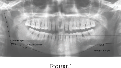 Association Of Mandible Anatomy With Age Gender And Dental Status