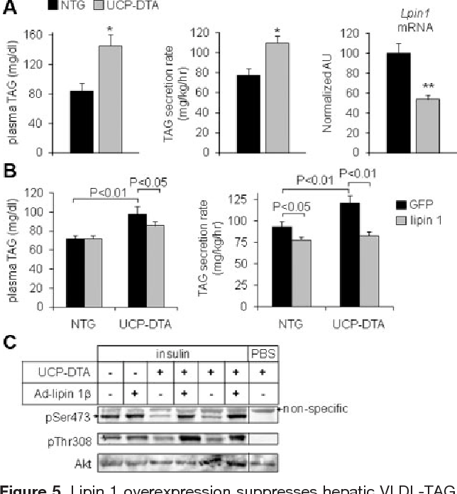 Figure 5. Lipin 1 overexpression suppresses hepatic VLDL-TAG secretion and increases insulin signaling in UCP-DTA mice. A, Left, The graph depicts plasma TAG levels in nontransgenic (NTG) or uncoupling protein 1 diphtheria toxin A (UCP-DTA) mice after a 4-hour fast. *P 0.05 vs NTG mice (n 5). Middle, The graph depicts mean rates of hepatic VLDL-TAG secretion in NTG or UCP-DTA mice determined using Triton WR-1339 as described in Methods. *P 0.01 vs NTG (n 4). Right, The graph depicts the expression of lipin 1 in liver of NTG and UCP-DTA mice as quantified by quantitative RT-PCR. **P 0.01 vs NTG control (n 6) B, Left, The graph depicts mean and SD (n 4) of plasma TAG levels in NTG or UCP-DTA mice infected with Ad-GFP or Ad-lipin 1 after a 4-hour fast. Right, The graph depicts mean and SD (n 5) of in vivo rates of hepatic TAG secretion in NTG or UCP-DTA mice infected with Ad-GFP or Ad-lipin 1 . C, The autoradiographs depict representative results of Western blotting analyses using hepatic protein lysates from NTG and UCP-DTA mice injected with insulin or saline. Duplicate blots were probed with antibodies against Akt phosphorylated at serine 473 (ser473), threonine 308 (thr308), or total Akt protein.