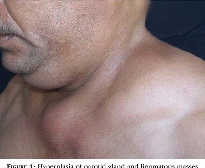 Benign symmetrical lipomatosis and pellagra associated with alcoholism. -  Semantic Scholar ea10965796e
