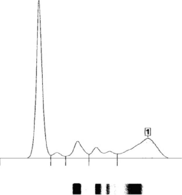 Figure 2. Protein electrophoresis.