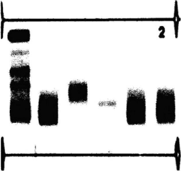 Figure 3. Protein immunofixation scan.