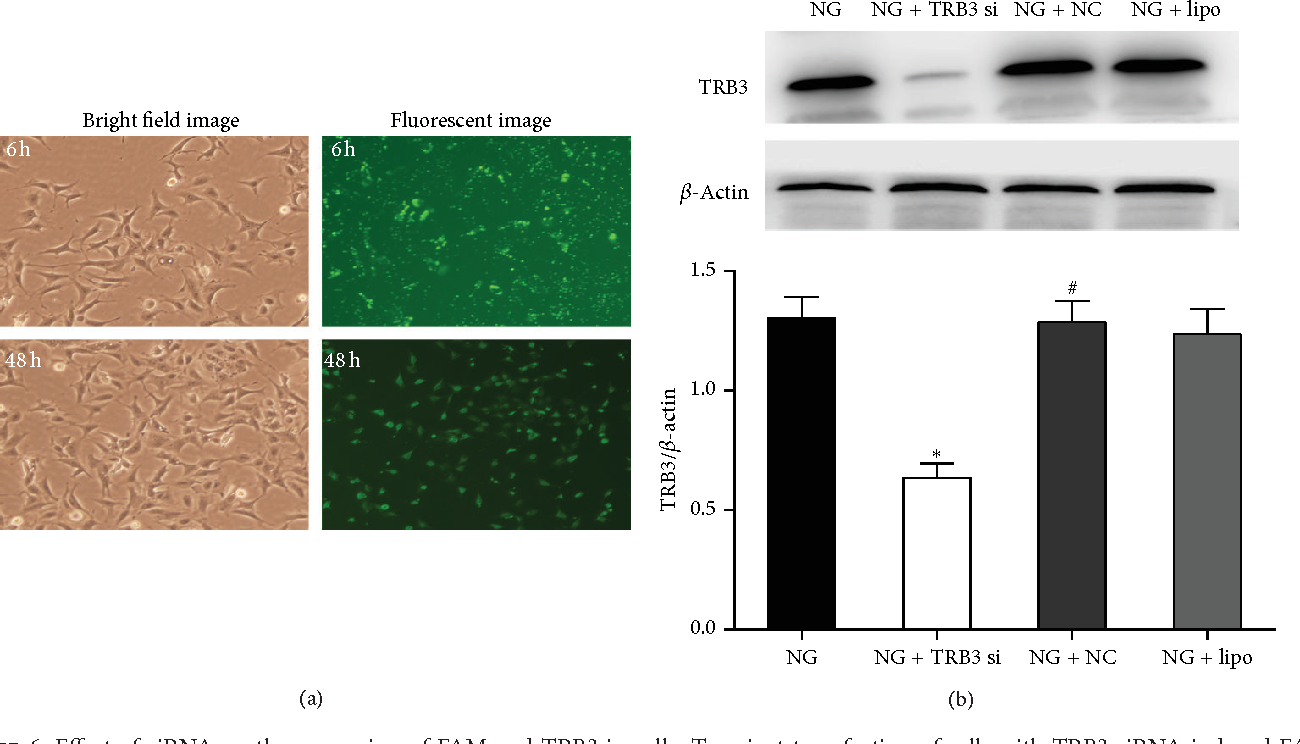 Figure 6: Effect of siRNA on the expression of FAM and TRB3 in cells. Transient transfection of cells with TRB3 siRNA induced FAM expression, indicating successful transfection. FAMexpressionwas observed at 0 and 48 h after transfection. Cells were transfected with TRB3 siRNA or its corresponding negative control and then incubated with NG (5.5mM glucose) for 48 h. (a) FAM expression was observed by bright field and fluorescent imaging (200x). (b)Western blot analysis of the protein expression of TRB3 at 48 h after TRB3 siRNA transfection. Data are mean ± SEM. ∗𝑃 < 0.05 versus NG; #𝑃 < 0.05 versus NG +TRB3 siRNA.