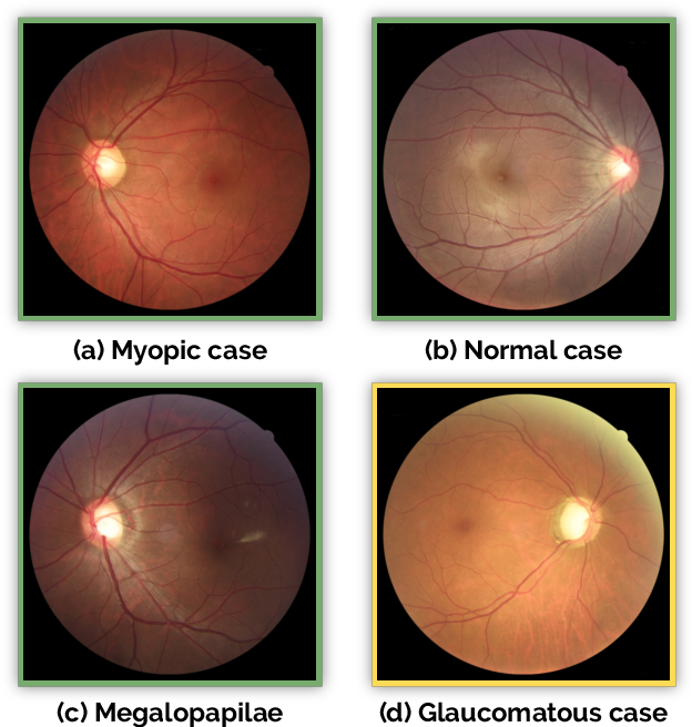 Figure 4 for REFUGE Challenge: A Unified Framework for Evaluating Automated Methods for Glaucoma Assessment from Fundus Photographs