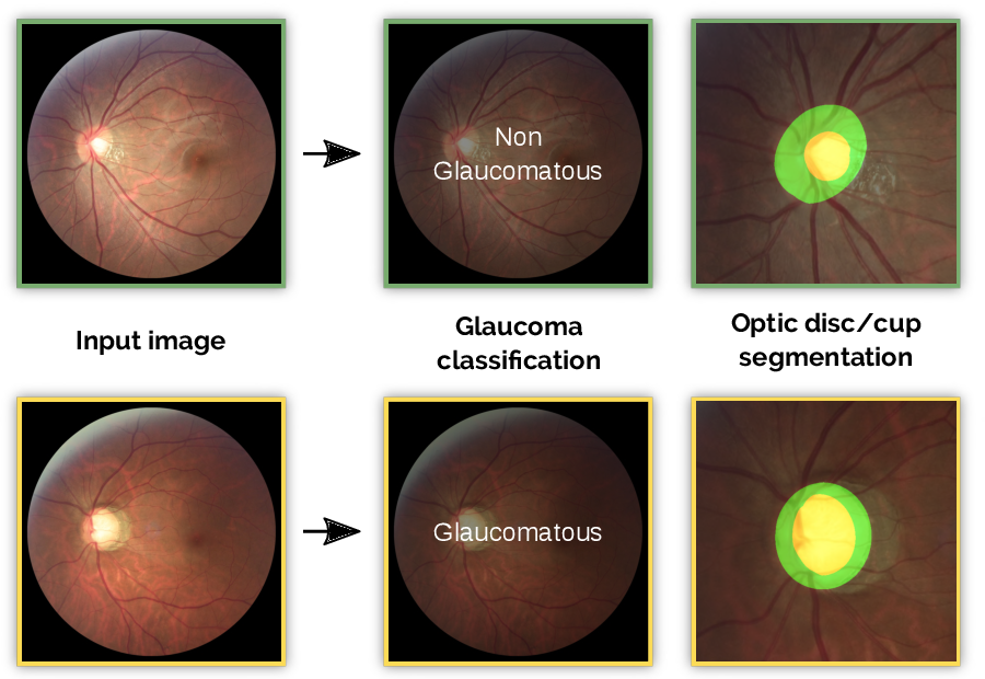 Figure 1 for REFUGE Challenge: A Unified Framework for Evaluating Automated Methods for Glaucoma Assessment from Fundus Photographs