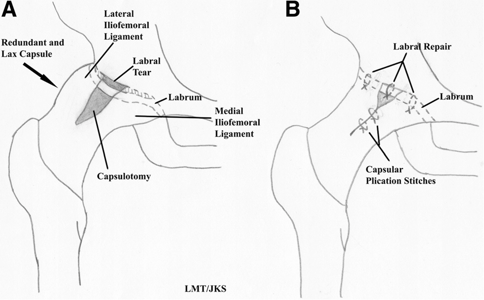 Differential Diagnosis Of Pain Around The Hip Joint Semantic Scholar