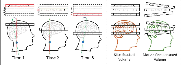 Figure 1 for Multimodal MRI Neuroimaging with Motion Compensation Based on Particle Filtering
