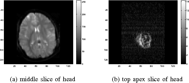 Figure 2 for Multimodal MRI Neuroimaging with Motion Compensation Based on Particle Filtering