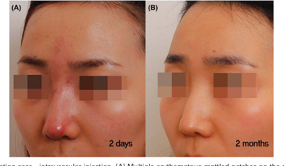 Figure 6 from Filler Rhinoplasty Evaluated by Anthropometric