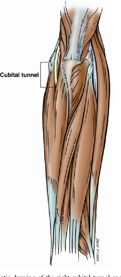 Correlation between the lengths of the upper limb and cubital tunnel ...