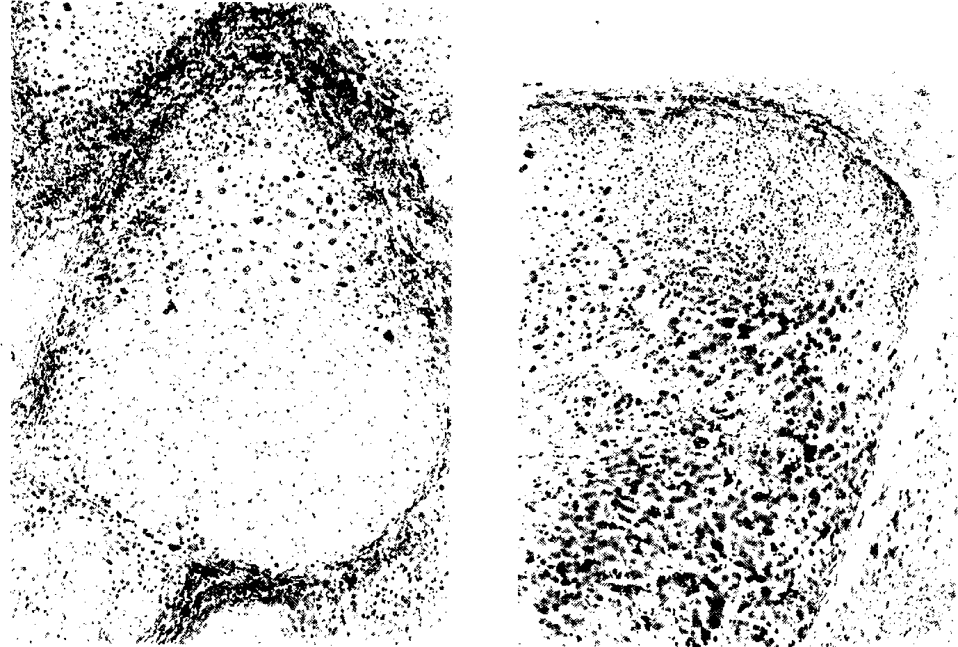 Figure 2 from Three types of liver cell dysplasia (LCD) in