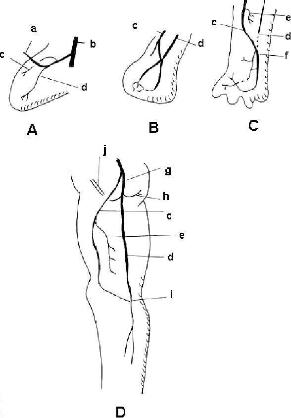 Figure 3 From The Persistence Of The Sciatic Artery