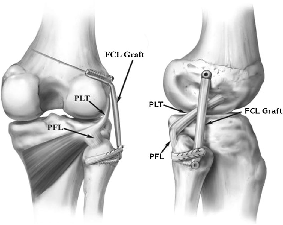 Outcomes following anatomic fibular (lateral) collateral ligament ...