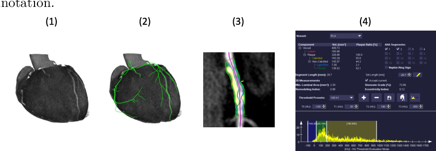 Figure 1 for Coronary Plaque Analysis for CT Angiography Clinical Research
