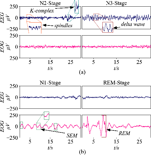 Figure 1 for SalientSleepNet: Multimodal Salient Wave Detection Network for Sleep Staging