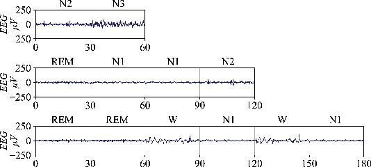 Figure 3 for SalientSleepNet: Multimodal Salient Wave Detection Network for Sleep Staging