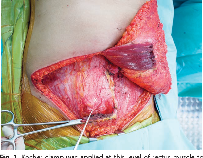Donor Site Complications And Remnant Of Rectus Abdominis Muscle