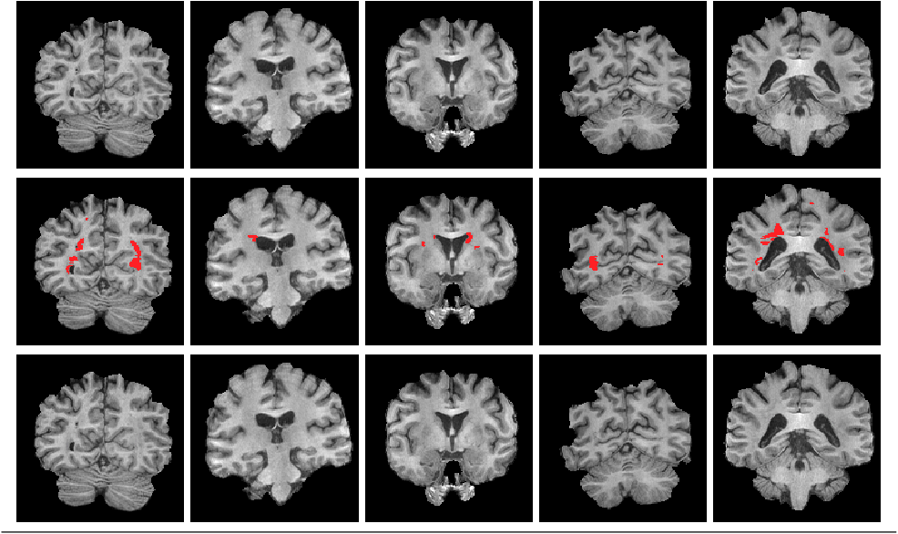 Figure 1 for Multiple Sclerosis Lesion Inpainting Using Non-Local Partial Convolutions