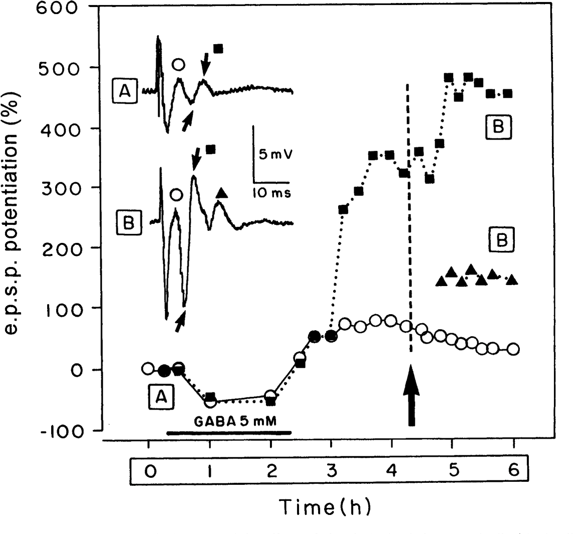 Fig. 3: In vitro induction of cortical GWS and the effects of electrical stimulation. Longitudinal brain slices (400