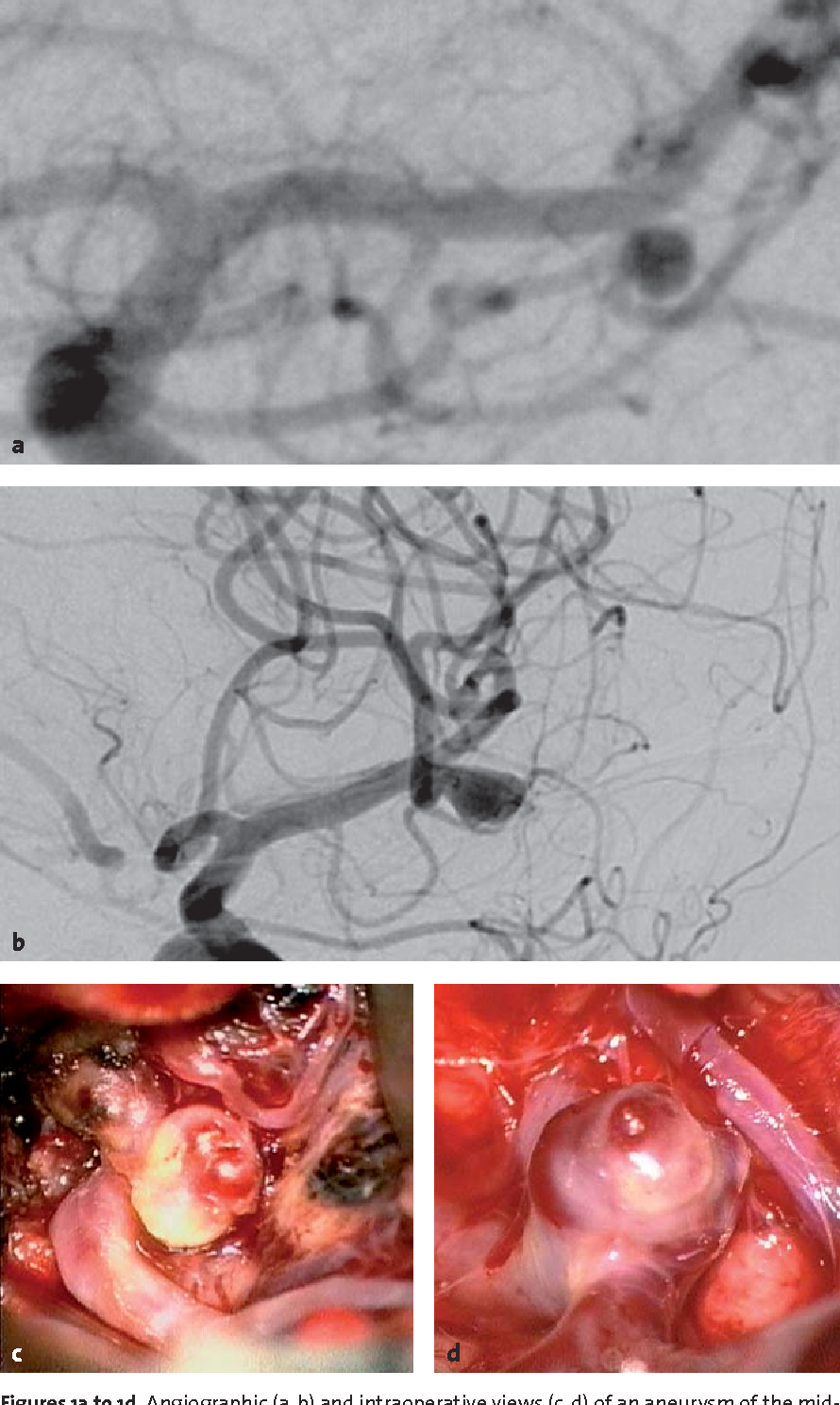Figures 1a to 1d. Angiographic (a, b) and intraoperative views (c, d) of an aneurysm of the middle cerebral artery with a satellite aneurysm.