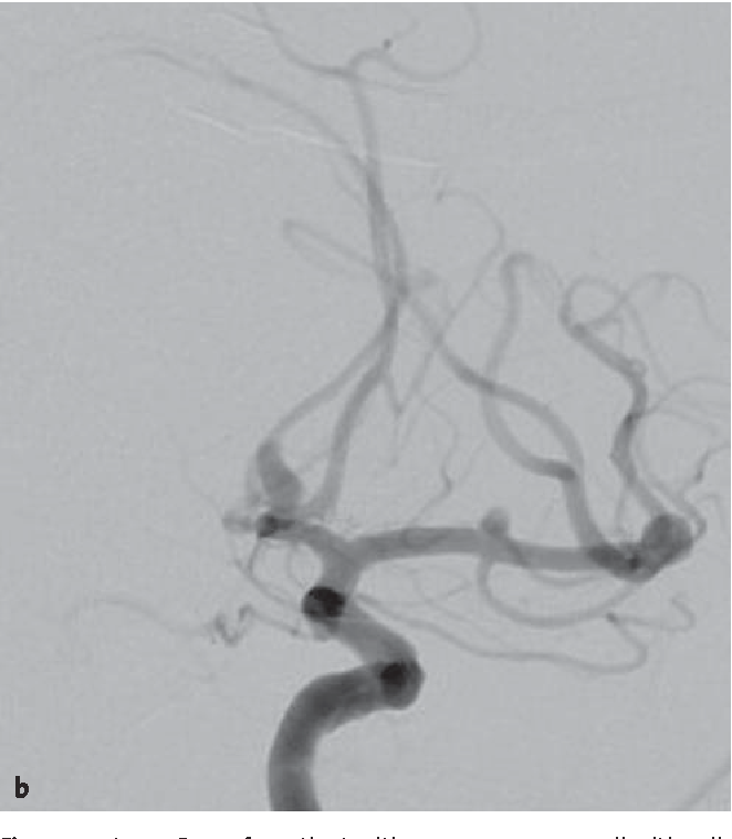 Figures 2a to 2c. Case of a patient with seven aneurysms, all with a diameter < 7 mm (a, b). Coil embolization of the ruptured lesion (c).