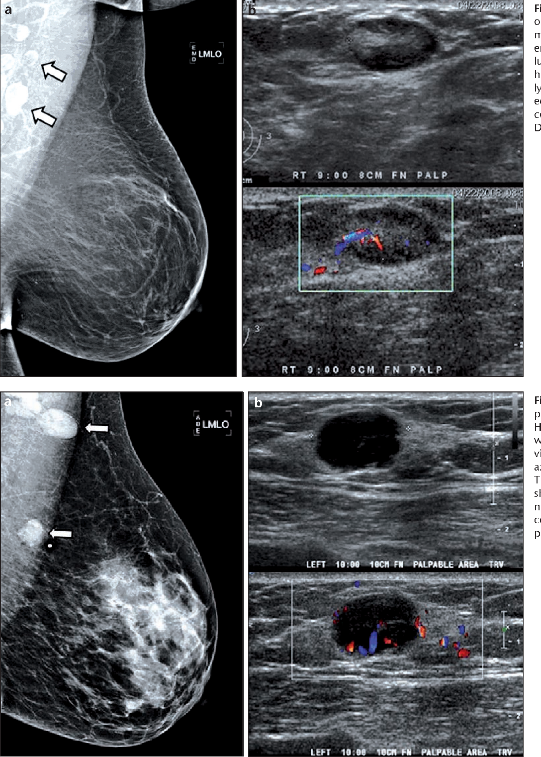 Abnormal Axillary Lymph Nodes On Negative Mammograms Causes Other
