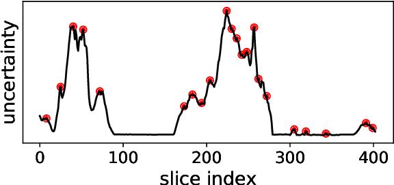 Figure 3 for Robust Segmentation Models using an Uncertainty Slice Sampling Based Annotation Workflow